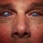 Плохой окулист. Десять пациентов потеряли зрение после приема у офтальмолога