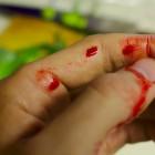 В Пензе пенсионер пырнул ножом в живот собственного сына