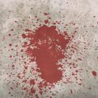 Жительница Пензенской области исполосовала собственного супруга ножом