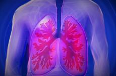 В Пензе из больницы сбежал мужчина с открытой формой туберкулеза