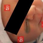 Медицина 80 уровня. При кесаревом сечении врачи разрезали лицо ребенка