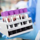 В Пензенской области провели около 775 тысяч тестов на коронавирус