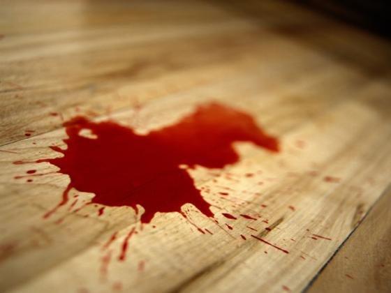 Жителя Сердобска избили досмерти после конфликта надороге