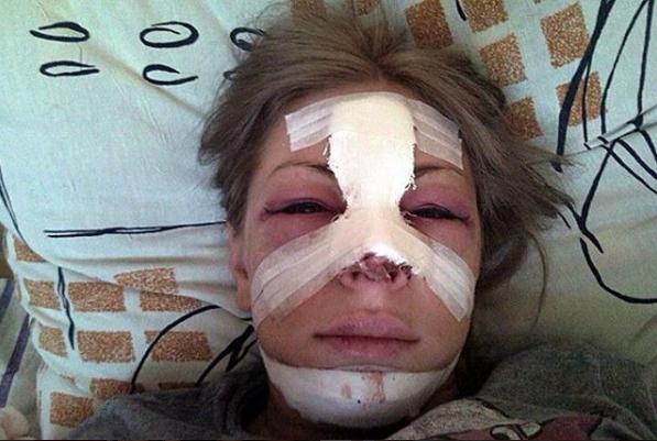 Эстрадная певица Саша Project отсудила от поликлиники 2 млн. руб.