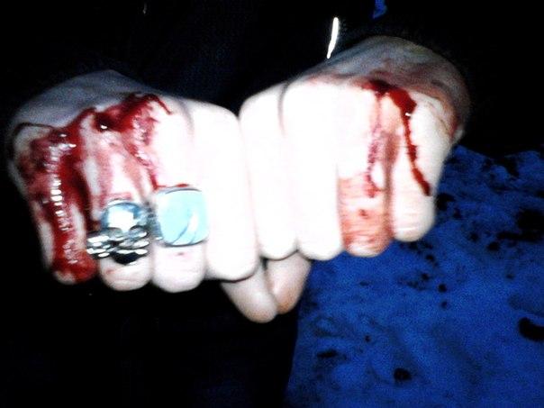 ВПензе задержаны двое мужчин, избивших прохожих вцентре города