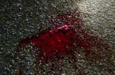 Двое мужчин зверски избили пензенца у бара на Революционной