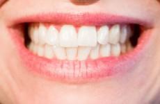 Стоматологию в Пензенской области строго разделят на платную и бесплатную