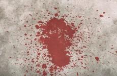 После празднования Дня Победы в центре Пензы мужчина зверски избил даму