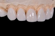 Пенсионера из Пензенской области обманули при покупке вставных зубов