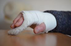 Сломанную руку пензячки оценили в 80 тысяч рублей