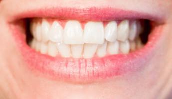 «Бережный к эмали»: женщина пыталась отбелить зубы средством для чистки унитаза